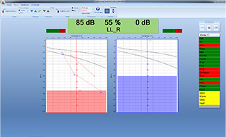 Audiologische Software evidENT3